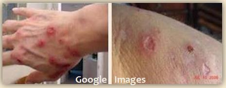 M Google Images 1 MB